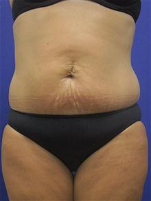 Liposuction Before Photo by Kevin Tehrani, MD; Great Neck, NY - Case 27915