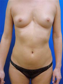 Breast Augmentation Before Photo by Kevin Tehrani, MD; Great Neck, NY - Case 27917