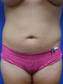 Liposuction Before Photo by Kevin Tehrani, MD; Great Neck, NY - Case 27925