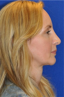 Rhinoplasty After Photo by Ali Sajjadian, MD, FACS; Newport Beach, CA - Case 33085