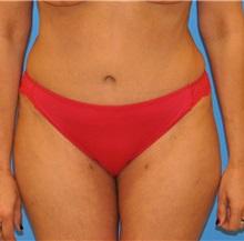 Tummy Tuck After Photo by Ali Sajjadian, M.D., F.A.C.S.; Newport Beach, CA - Case 33088