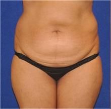 Tummy Tuck Before Photo by Ali Sajjadian, M.D., F.A.C.S.; Newport Beach, CA - Case 33088