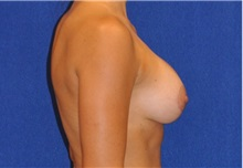 Breast Augmentation After Photo by Ali Sajjadian, MD, FACS; Newport Beach, CA - Case 33090