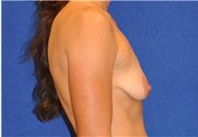 Breast Augmentation Before Photo by Ali Sajjadian, MD, FACS; Newport Beach, CA - Case 33090