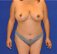 Breast Reduction After Photo by Ali Sajjadian, M.D., F.A.C.S.; Newport Beach, CA - Case 33092