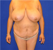 Breast Reduction Before Photo by Ali Sajjadian, M.D., F.A.C.S.; Newport Beach, CA - Case 33092
