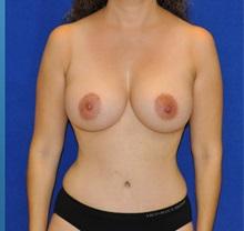 Breast Augmentation After Photo by Ali Sajjadian, M.D., F.A.C.S.; Newport Beach, CA - Case 33093