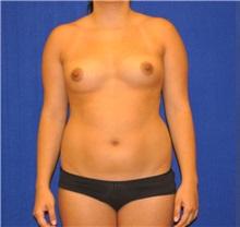 Breast Augmentation Before Photo by Ali Sajjadian, M.D., F.A.C.S.; Newport Beach, CA - Case 33093