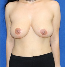 Breast Reduction After Photo by Ali Sajjadian, M.D., F.A.C.S.; Newport Beach, CA - Case 44218