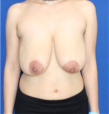 Breast Reduction Before Photo by Ali Sajjadian, M.D., F.A.C.S.; Newport Beach, CA - Case 44218