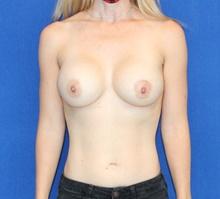 Breast Augmentation After Photo by Ali Sajjadian, M.D., F.A.C.S.; Newport Beach, CA - Case 44221