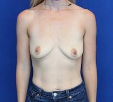 Breast Augmentation Before Photo by Ali Sajjadian, M.D., F.A.C.S.; Newport Beach, CA - Case 44221