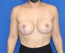 Breast Augmentation After Photo by Ali Sajjadian, M.D., F.A.C.S.; Newport Beach, CA - Case 44222