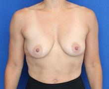 Breast Augmentation Before Photo by Ali Sajjadian, M.D., F.A.C.S.; Newport Beach, CA - Case 44222