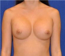 Breast Augmentation After Photo by Ali Sajjadian, M.D., F.A.C.S.; Newport Beach, CA - Case 44248