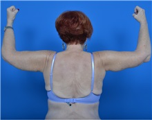 Arm Lift After Photo by Jonathan Weinrach, MD; Scottsdale, AZ - Case 36767