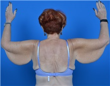 Arm Lift Before Photo by Jonathan Weinrach, MD; Scottsdale, AZ - Case 36767