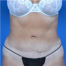 Tummy Tuck After Photo by Jonathan Weinrach, MD; Scottsdale, AZ - Case 36771