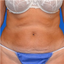 Tummy Tuck Before Photo by Jonathan Weinrach, MD; Scottsdale, AZ - Case 36771