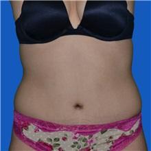 Tummy Tuck After Photo by Jonathan Weinrach, MD; Scottsdale, AZ - Case 36775