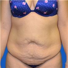 Tummy Tuck Before Photo by Jonathan Weinrach, MD; Scottsdale, AZ - Case 36775