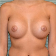 Breast Augmentation After Photo by Jonathan Weinrach, MD; Scottsdale, AZ - Case 36798