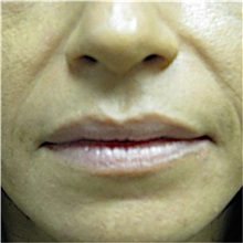 Dermal Fillers Before Photo by Jonathan Weinrach, MD; Scottsdale, AZ - Case 36862