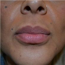 Lip Augmentation / Enhancement After Photo by Jonathan Weinrach, MD; Scottsdale, AZ - Case 36867