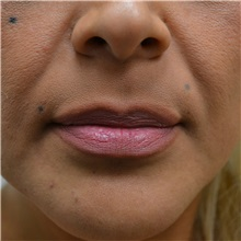Lip Augmentation / Enhancement Before Photo by Jonathan Weinrach, MD; Scottsdale, AZ - Case 36867