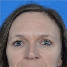 Eyelid Surgery After Photo by Jonathan Weinrach, MD; Scottsdale, AZ - Case 36895