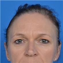 Eyelid Surgery Before Photo by Jonathan Weinrach, MD; Scottsdale, AZ - Case 36895