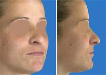Rhinoplasty After Photo by William Franckle, MD; Voorhees, NJ - Case 27279